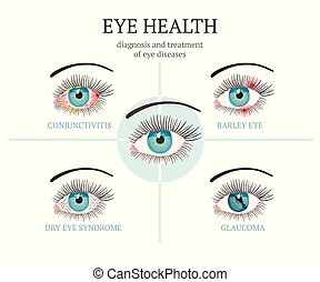 Most common eye problems - conjunctivitis, glaucoma, dry eye...