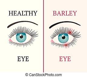 Eye disease. Ophthalmology health illustration. - Barley eye...