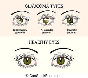 Eye disease. Ophthalmology health illustration. - Eye...