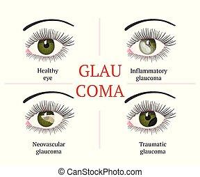 Eye disease. Ophthalmology health illustration. - Glaucoma...