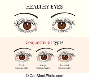 Eye disease. Ophthalmology health illustration.