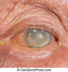 Eye exam - Close up of the blind eye during eye examination.