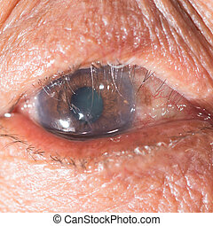 eye exam - Close up of the eye during ophthalmic...