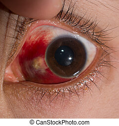 Eye exam - Close up of the large sub conjunctival ...
