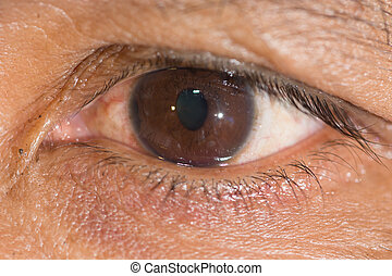 EYe exam - Close up of the traumatic cyclo dialysis during...