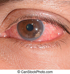 Eye exam - close up of the retained foriegn body during eye...