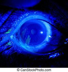 Eye exam - close up of the corneal abrasion under...