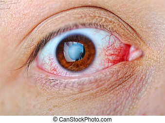 Eye, macro, blood