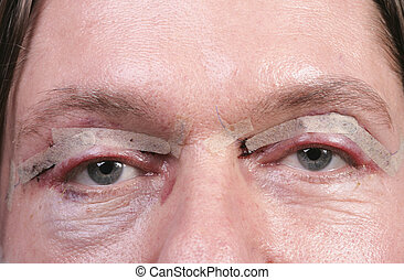 Close up of male eyes after eyelid surgery
