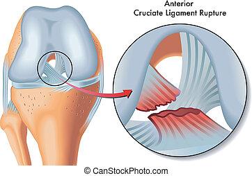 föregående, cruciate, brista, ligament