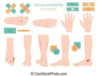 fötter, hands., dermatology., infographics, kollektion, ...