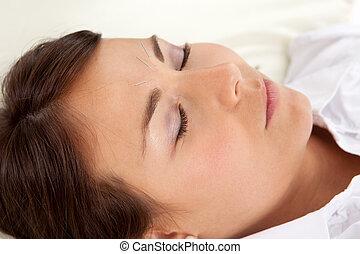 facciale, agopuntura, trattamento