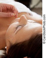 facciale, agopuntura, trattamento bellezza