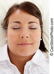 facciale, bellezza, agopuntura, trattamento