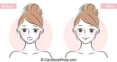 face about plastic surgery - woman face before and after...