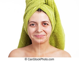 Face before after