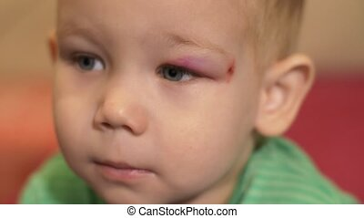 Face of a boy with a black eye