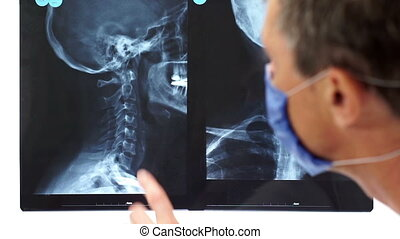 Face of Doctor Pointing Neck Xray