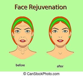 Face rejuvenation, vector illustration with before after...
