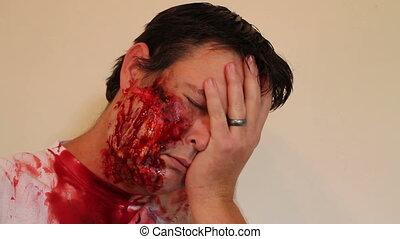 Face trauma injured man - Severely injured man