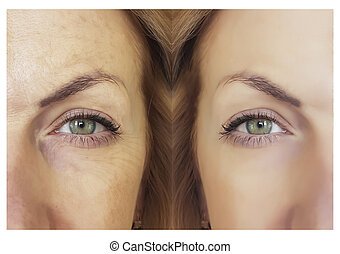 face wrinkles before and after