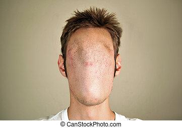 Faceless Man - An anonymous faceless mutated man.