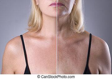 facelift, 返老還童, 婦女的, 皮膚, 以前, 反, 概念, 以後, 皺紋, 治療, 外科, 老化, 塑料
