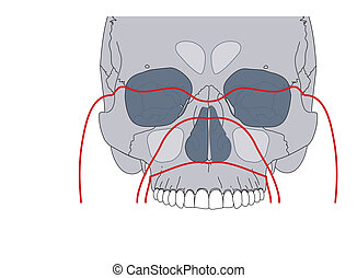 Facial fractures - Le Fort fractures of the face