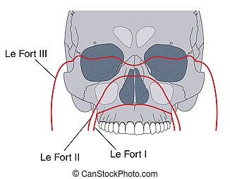 Facial fractures - Le Fort fractures of the face -- labeled...
