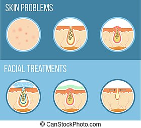 Facial treatment infographic