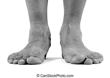 Fallen arches, flat feet - black and white image of flat...