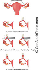 Fallopian tube ligation