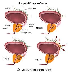 fases, de, cancro da próstata, eps10