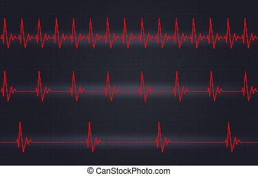 Fast Normal Slow Heartbeat Illustration