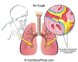 Fat Cough - medical illustration of the symptoms of fat...