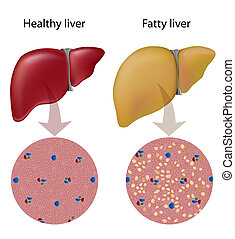Fatty liver disease, eps10 - Normal liver tissue versus...
