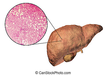 Fatty liver, liver steatosis, 3D illustration and...