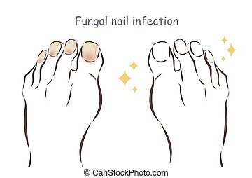 feet with fungal nail infection