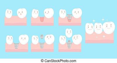 felizmente, sonrisa, implante, caricatura, diente