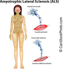 Female amyotrophic lateral sclerosis illustration