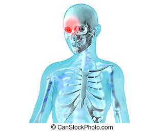 Female Anatomy - Headache