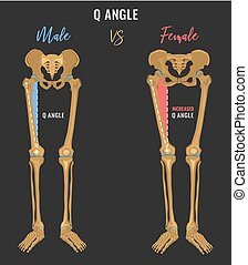 Female and male skeleton differences poster. Q angle in...