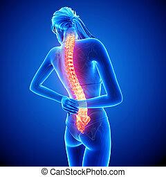 Female back pain anatomy - 3d rendered illustration of...
