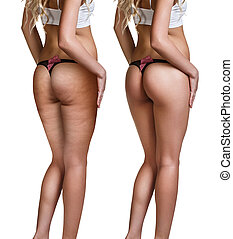 Female buttocks before and after cellulite skin isolated on...