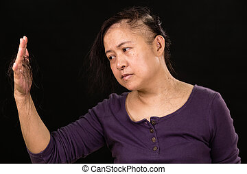 Female cancer patient holding fallen hair
