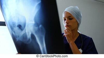 Female doctor examining x-ray report 4k