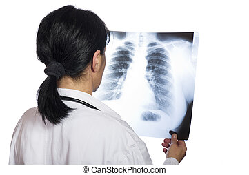 female doctor looking at the x-ray picture of lungs