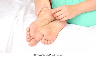 Female feet with skin peeling off. Foot peeling after the...