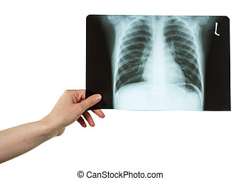 Female hand holding black-and-white x-ray of the chest isolated on white background.
