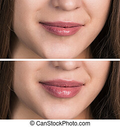 Beautiful female lips before and after augmentation